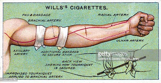 'Improvised tourniquet applied to Brachial artery' Wills' cigarette card 1913 One of a series of 50 'First Aid' cigarette cards issued by WD HO Wills...
