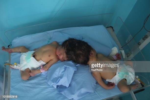 In Badakhshan Afghanistan on 8 August 2018 a mother gave birth to a dichotomy that attached from the head Doctors say the possibility of separating...