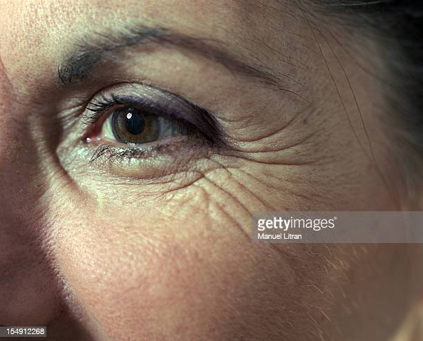 In France in March 2002 The lifting effect of the revolution by the beauty medicine thanks to hyaluronic acid injections peels and laser use Close up...