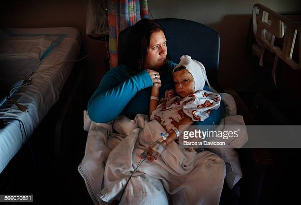 In pain and disorientated Jami comforts Arefa shortly after her skin graft surgery at Shriner's Hospital for Children When Arefa first arrived in LA...