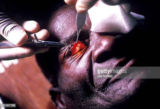 In the second phase of an operation to prevent any further damage due to tracoma this patient's eyelid is pulled out from it's turnedunder position...