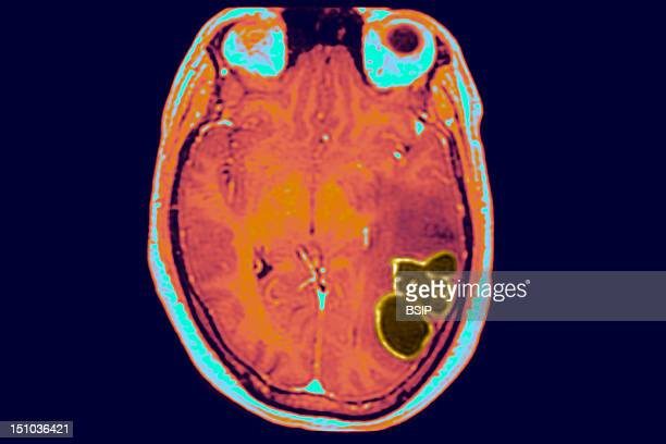 In The Temporo Occipital Region Of The Brain That Controls Language, An Abcess Causing Epileptic Seizures And Several Hours Of Aphasia Is Visible....