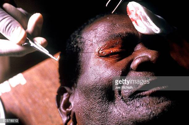 In the third phase of an operation to prevent further damage due to tracoma this patient's eyelid is suchered back in place from it's turnedunder...