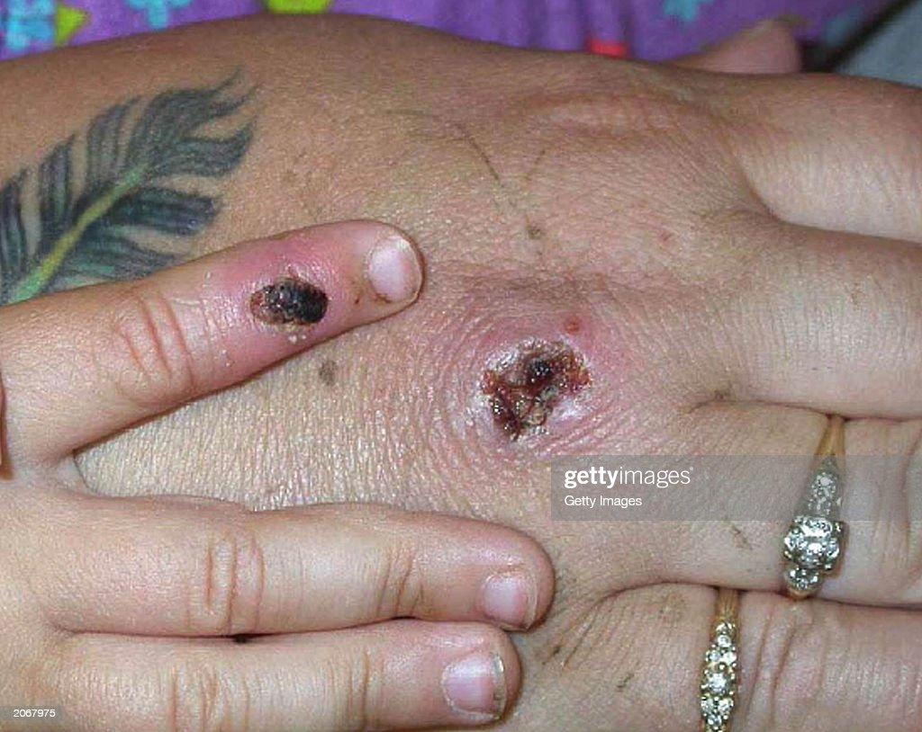 Monkey Pox Lesions  : News Photo