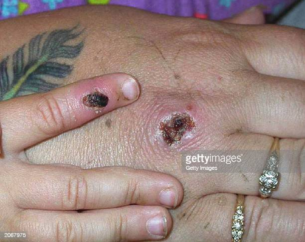 In this Centers for Disease Control and Prevention handout graphic symptoms of one of the first known cases of the monkeypox virus are shown on a...