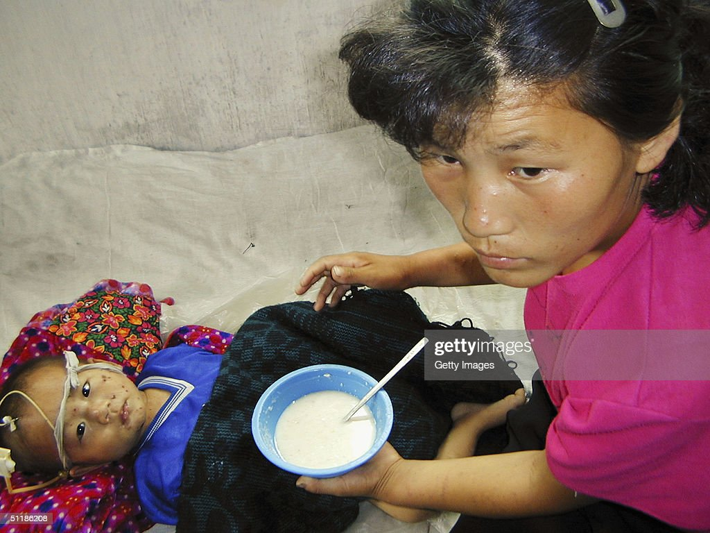 Millions Suffer From Malnourishment In North Korea : News Photo