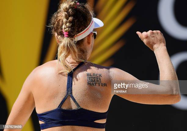 In this handout image provided by AVP, April Ross is seen with a temporary black lives matter tattoo during her match against Sarah Pavan and Melissa...