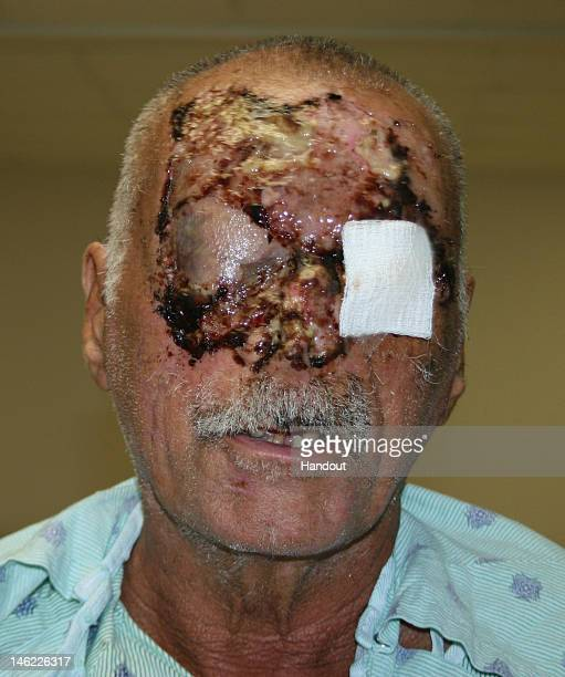 In this handout image provided by Jackson Memorial Hospital, cannibal attack victim Ronald Poppo shows the extent of his injuries for the first time...
