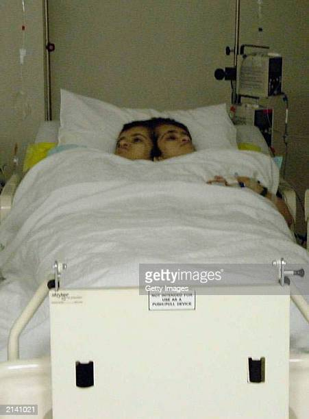 In this handout photo from Raffles Hospital conjoined twins Ladan and Laleh Bijani rest in the Intensive Care Unit at the Raffles Hospital after the...