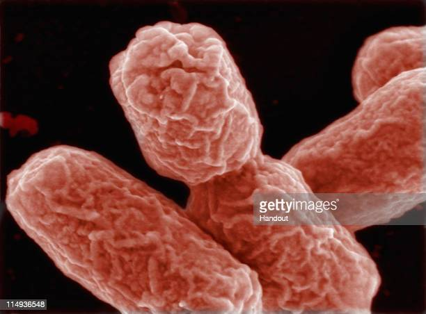 In this handout photo provided by the Helmholtz Center for Research on Infectious Diseases an EHEC bacteria is visible on May 30 2011 in Berlin...