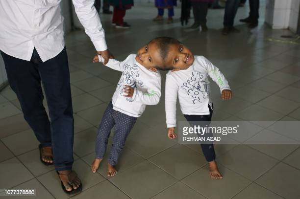 TOPSHOT In this photo taken on January 4 Bangladeshi conjoined twin girls Rabeya and Rukaiya walk with their father Rafiqul Islam at Dhaka Medical...