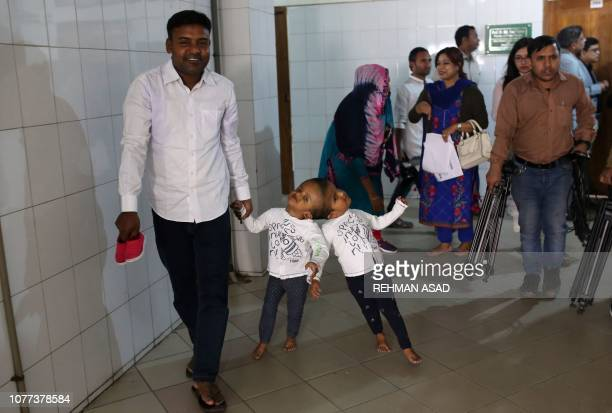 In this photo taken on January 4 Bangladeshi conjoined twin girls Rabeya and Rukaiya walk with their father Rafiqul Islam at Dhaka Medical College...