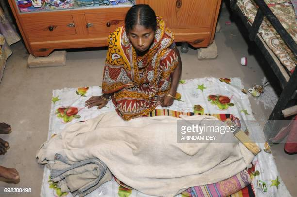 In this photograph taken June 19 2017 Fatema Begum sits next to the body of her daughter Roona who was suffering from hydrocephalus at their hut in...