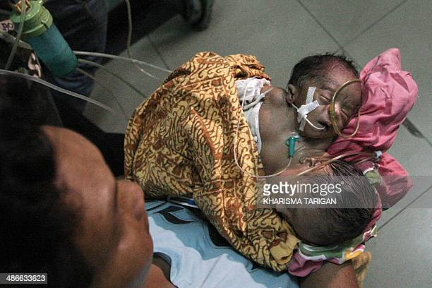 In this photograph taken on April 23 an Indonesian grandmother carries a cojoined twin baby boy to a hospital in Medan city after the mother the wife...