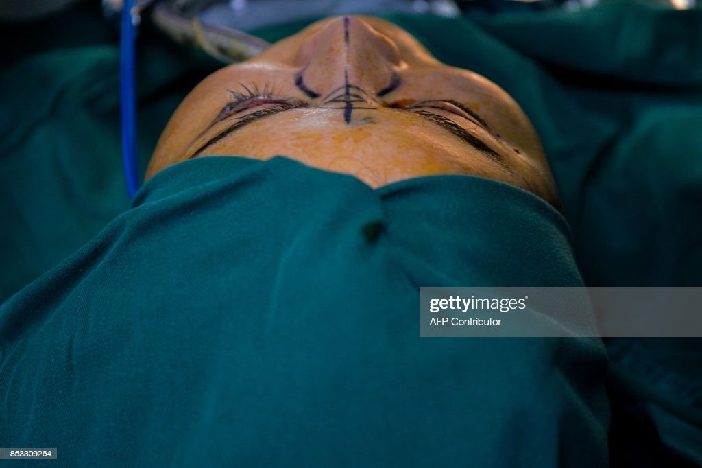 In this photograph taken on August 22, 2017, Chen Yan, 35, undergoes a plastic surgery procedure at Huamei Medical Cosmetology Hospital in Shanghai. Plastic surgery is booming in China, fuelled by rising incomes, growing Western influences and the imperative of looking good on social media. / AFP PHOTO / CHANDAN KHANNA / To go with AFP story China-Lifestyle-Health-Social-Plastic, Feature by Peter Stebbings with Morgan Huang