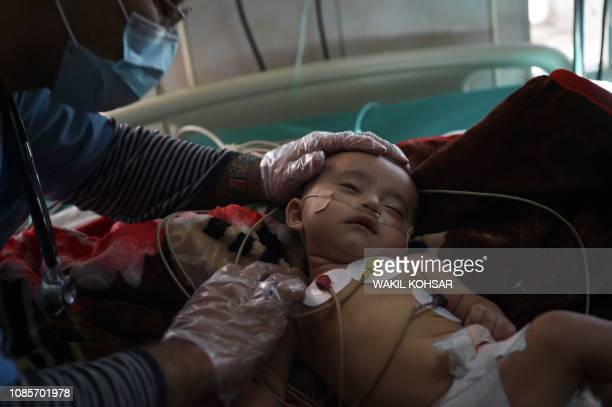 In this photograph taken on January 2 an Afghan child suffering from respiratory problems is treated by medical staff at the Indira Gandhi Children's...