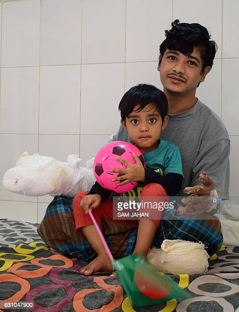 In this photograph taken on January 4 Bangladeshi man Abul Bajandar widely known as 'Tree Man' for his rare disease relaxes with his daughter on a...