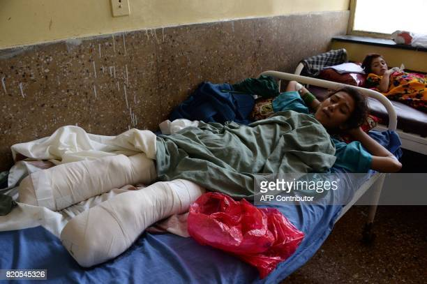 TOPSHOT In this photograph taken on July 21 Afghan girl Shazia looks at her injuries after losing her lower legs in an explosion after stepping on a...