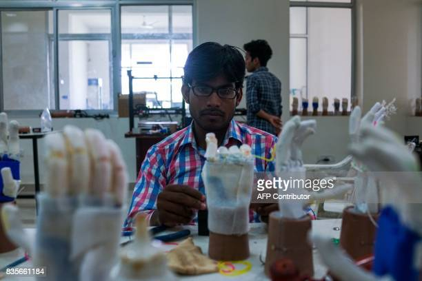 In this photograph taken on June 13 a technician adds a battery to prosthetic hands at the Bhagwan Mahaveer Viklang Sahayata Samiti nonprofit...