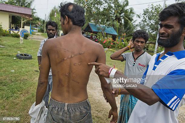 In this photograph taken on May 18 rescued Bangladeshi migrant Mohammad Meshar Ali shows Mohammad Murad Hussein's head and body scars at Langsa port...