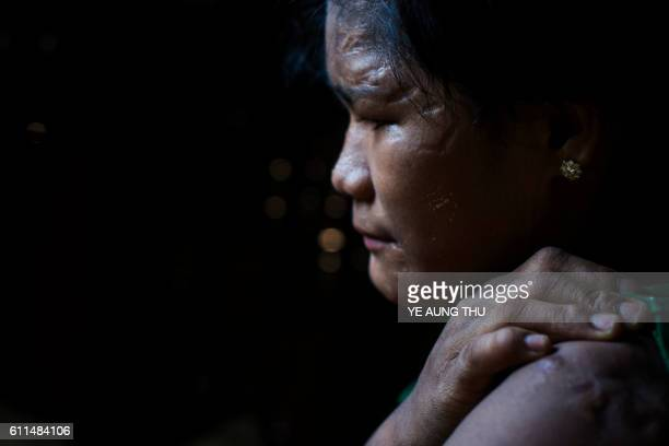 TOPSHOT In this photograph taken on September 29 shows 16 year old abused Myanmar child slave Than Than Ei with deep scars on her face hand and upper...