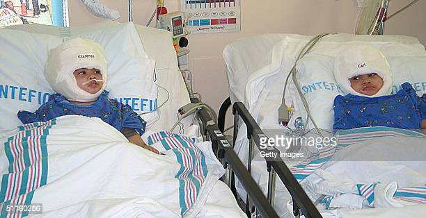 In this picture released by Montefiore Medical Center Clarence and Carl Aguirre rest sidebyside in their shared room at The Children's Hospital at...