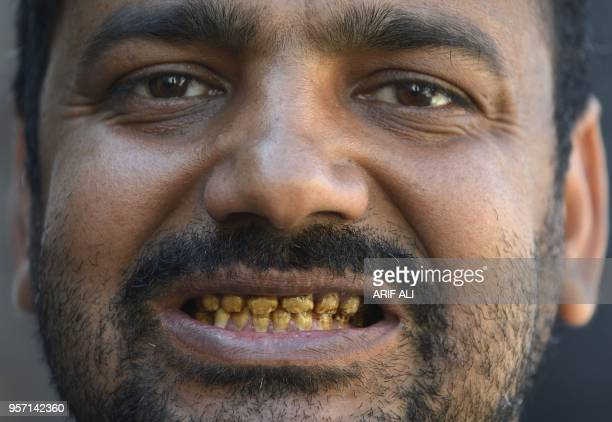 In this picture taken on February 25 Pakistani man Naveed showing his teeth rotting allegedly due to environmental factors and polluted groundwater...