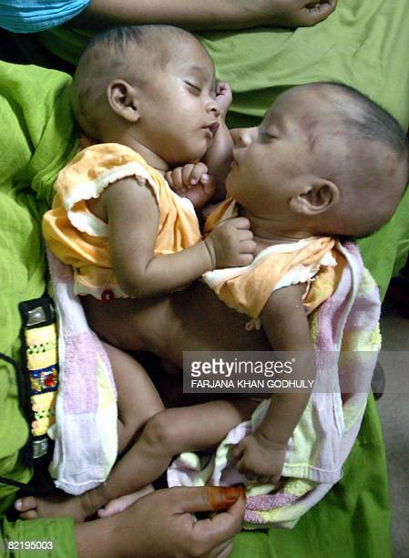 In this picture taken on July 22 threemonthold Bangladesh cojoined twins Banya 'Flood' and Barsha 'Rain' are pictured at the Bangabandhu Medical...