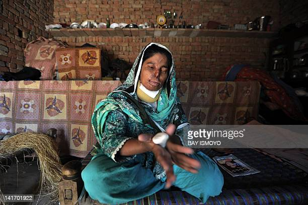 In this picture taken on March 16 2012 in Bahawalpur district in Multan shows Asiya Bibe an acid attack victim in her bedroom Acid attacks are among...