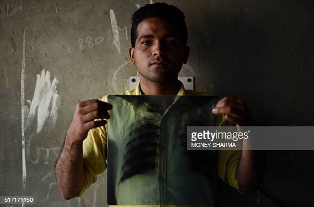 In this picture taken on March 3 Indian tuberculosis patient Sonu Verma poses with his chest xray in Sonipat Some 22 million patients are diagnosed...