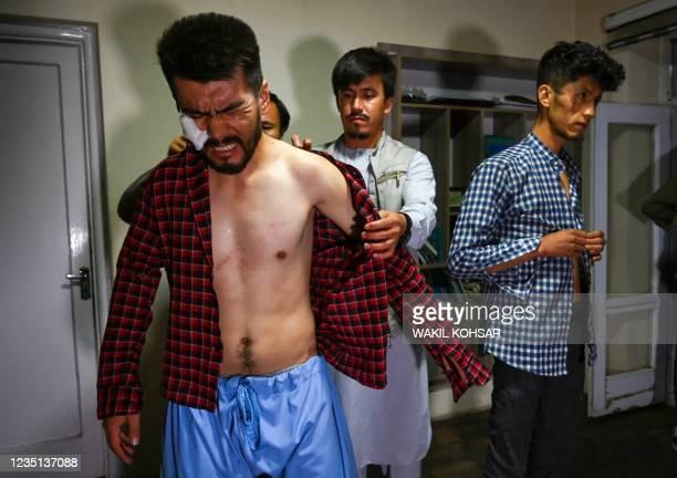 In this picture taken on September 8 Afghan newspaper Etilaat Roz journalist Nematullah Naqdi reacts as his colleagues help him wear a shirt in their...