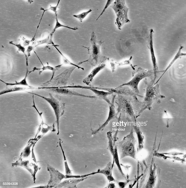 In this undated handout photo released by the Institute for Stem Cell Research on August 16 a colony of neural stem cells which can make all the cell...