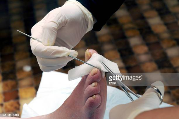 Independent Nurse, In Venissieux, France. Dressing After Removal Of A Nail On A Diabetic Foot.