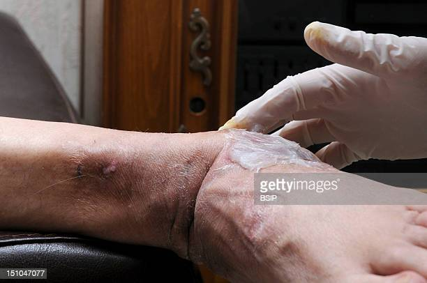 Independent Nurse In Venissieux France Patient Presenting Hyperkeratosis Due To The Wearing Of Medical Shoes Application Of Vaseline Emollient After...