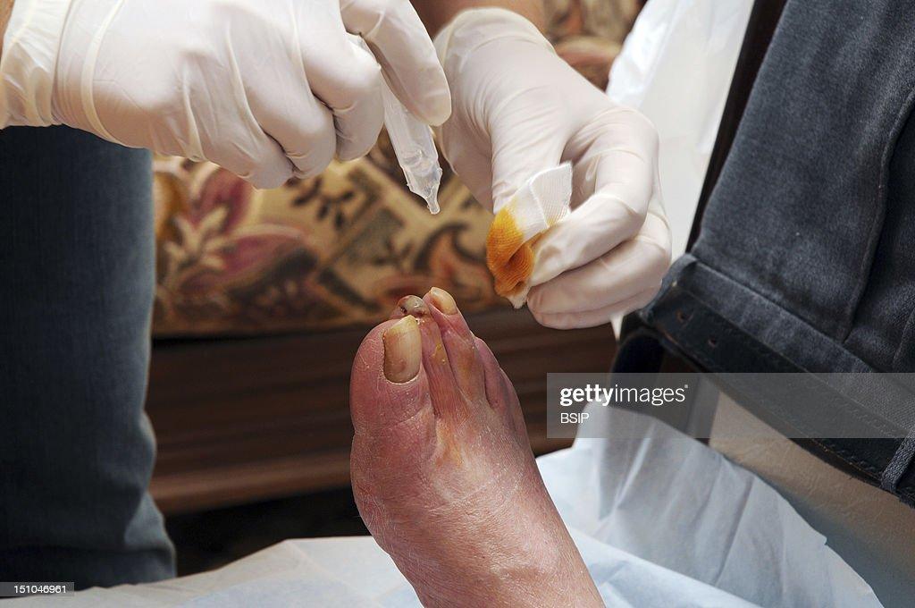 Diabetic Foot Care : News Photo