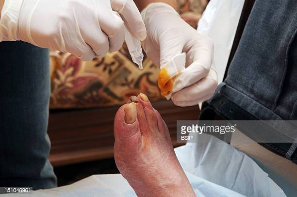 Independent Nurse In Venissieux France Preparation Of Care Betadine And Physiological Serum Diabetic Foot Showing Necrosis On The First Phalanx