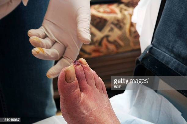 Independent Nurse In Venissieux France Removal Of A Nail On A Diabetic Foot