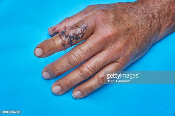 index finger with injury - extremism stock pictures, royalty-free photos & images