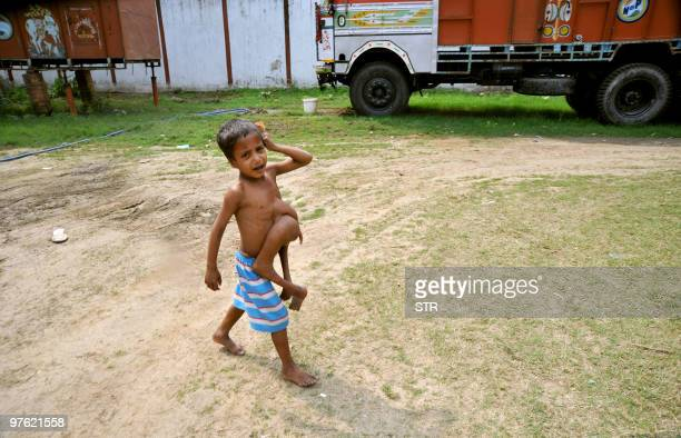 Indiadisabilitychildrenhealth FEATURE by Imran Khan This February 18 2010 photograph shows Indian boy Deepak Kumar crying as he walks with a...