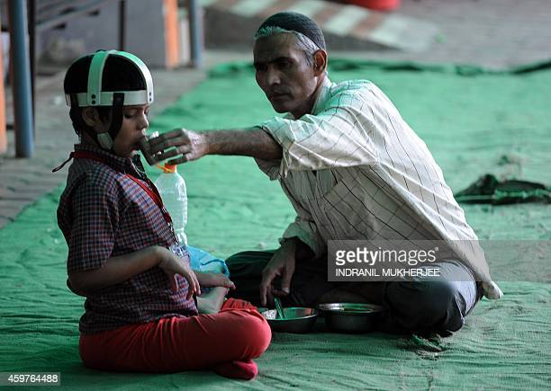 IndiadisasterpollutionBhopalanniversarychildrenFOCUS An Indian resident feeds secondgeneration victim of the Bhopal Gas disaster Umar at the Chingari...
