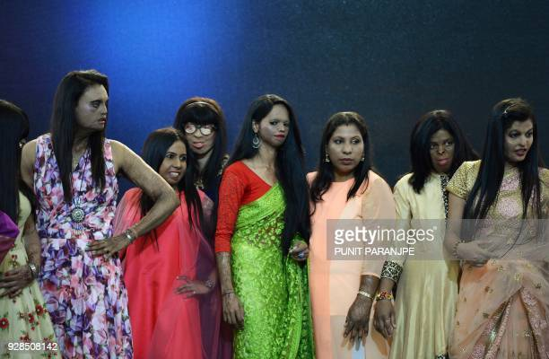 TOPSHOT Indian acid attack survivors pose during a fashion show as part of a campaign to spread the message 'Stop Acid Sale' in Thane on March 7...