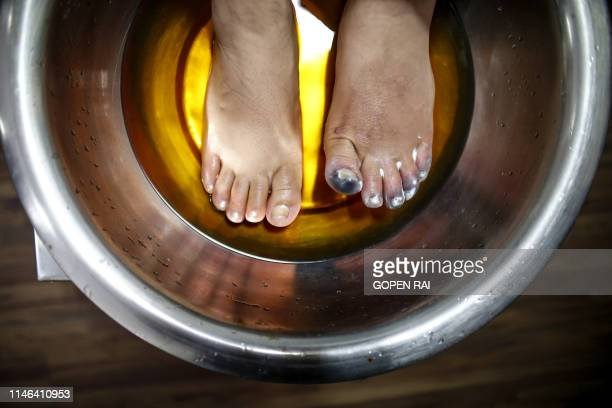 Indian Everest climber Ameesha Chauhan dips her feet in a warm solution at a hospital in Kathmandu on May 27 2019 Ameesha Chauhan a survivor of the...