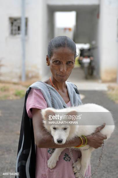 Indian HIV positive patient Vimalaakshi is photographed with her pet puppy in the sequestered residential colony she lives in on the outskirts of...