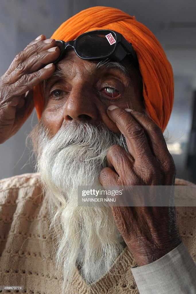 Indian patient Joginder Singh who lost his eyesight after undergoing surgery at an eye camp shows his damaged eye at a government hospital in...