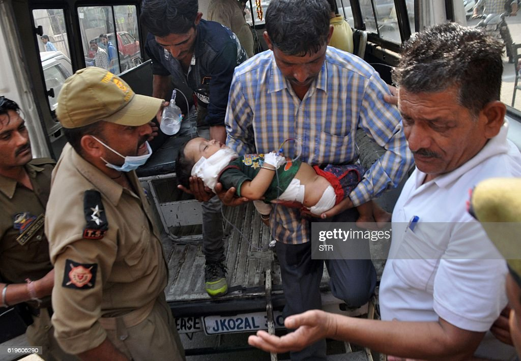 TOPSHOT Indian volunteers and officials carry a two and a half yearold child Pari into The Government Medical College Hospital in Jammu on November 1.