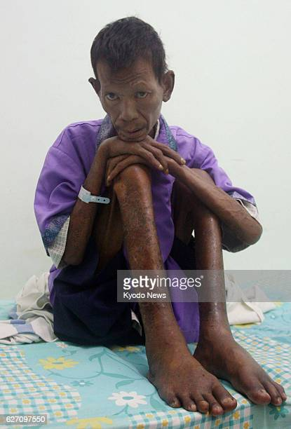 VILLAGE Indonesia This Nov 23 2013 photo shows Sutarip a leprosy patient sitting on his bed at a leprosy hospital in the village of Sumberglagah in...