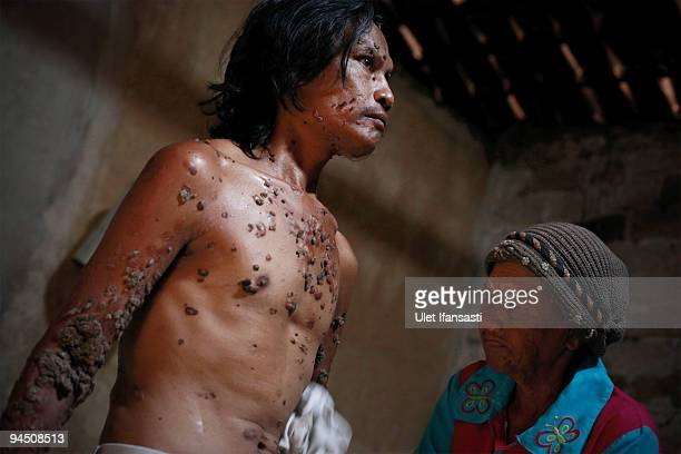 Indonesian man Dede Koswara bath with the way in flush with a damp cloth in his home village on December 16 2009 in Bandung Java Indonesia Due to a...