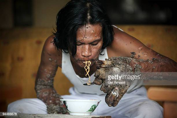 Indonesian man Dede Koswara eats as he poses for a photographer in his home village on December 15 2009 in Bandung Java Indonesia Due to a rare...