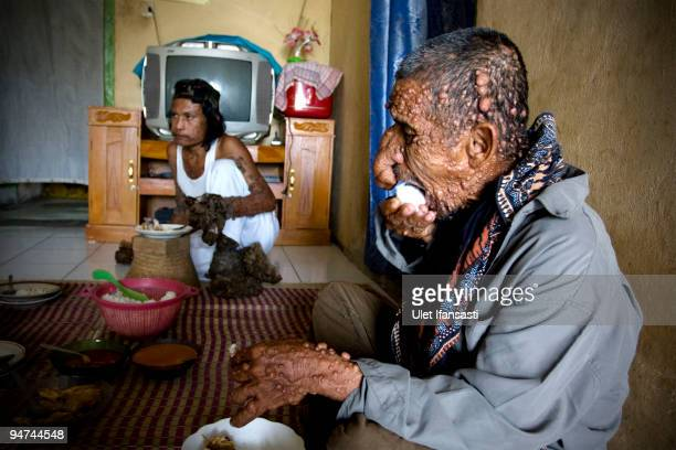 Indonesian man Dede Koswara eats with his friend Sakim in his home on December 18 2009 in Bandung Java Indonesia Due to a rare genetic problem with...