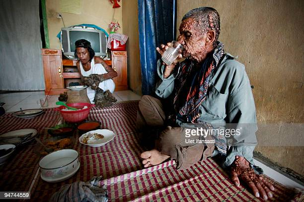 Indonesian man Dede Koswara eats with his friend Sakim in his home village on December 18 2009 in Bandung Java Indonesia Due to a rare genetic...